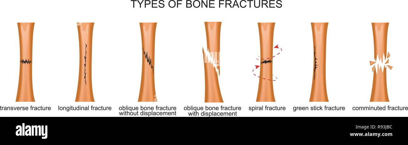 vector illustration of the types of bone fractures Stock