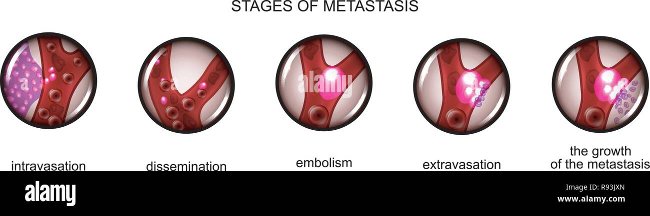 vector illustration of the stage of metastasis of cancer cells - Stock Vector