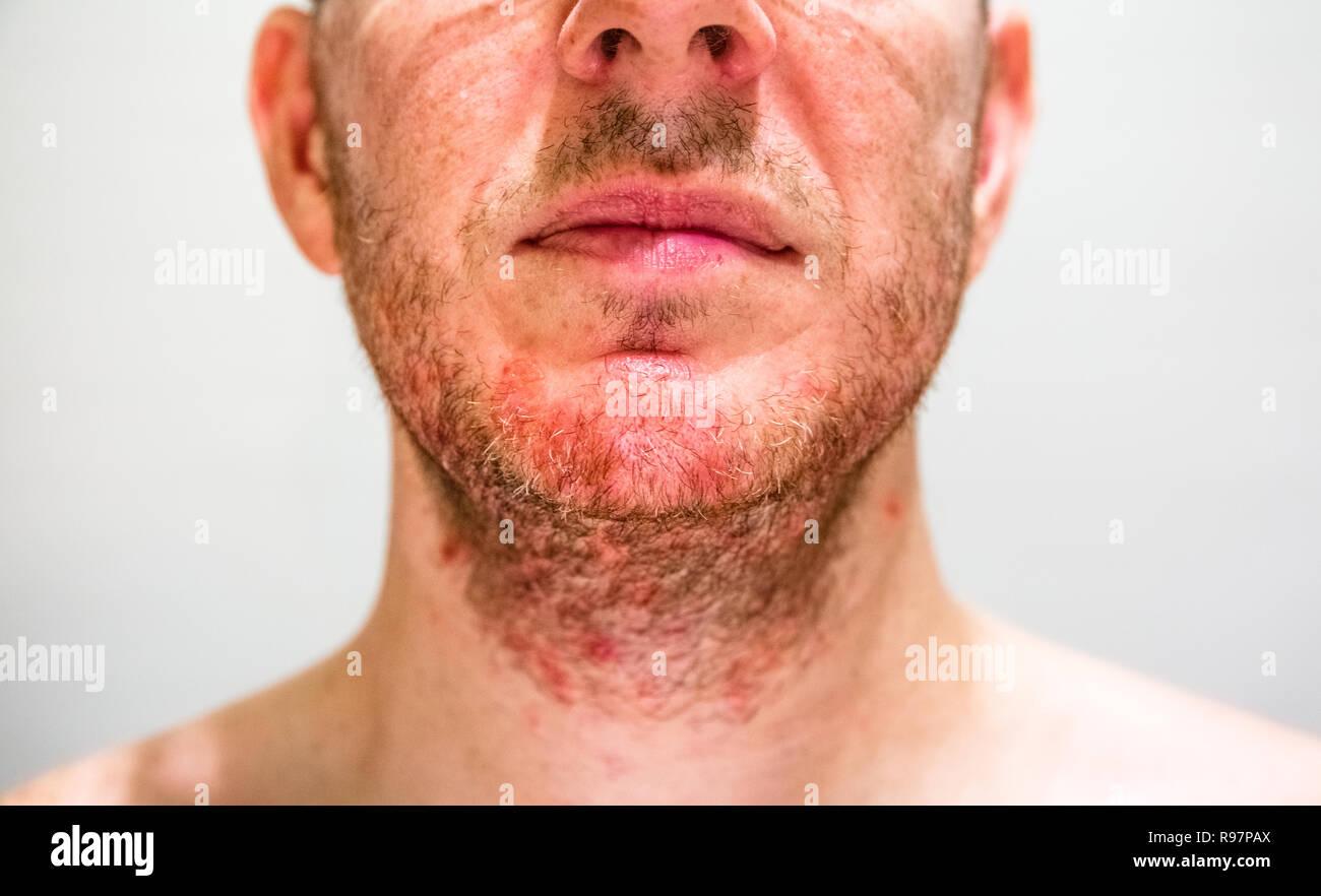 Man with seborrheic dermatitis in the beard area - Stock Image