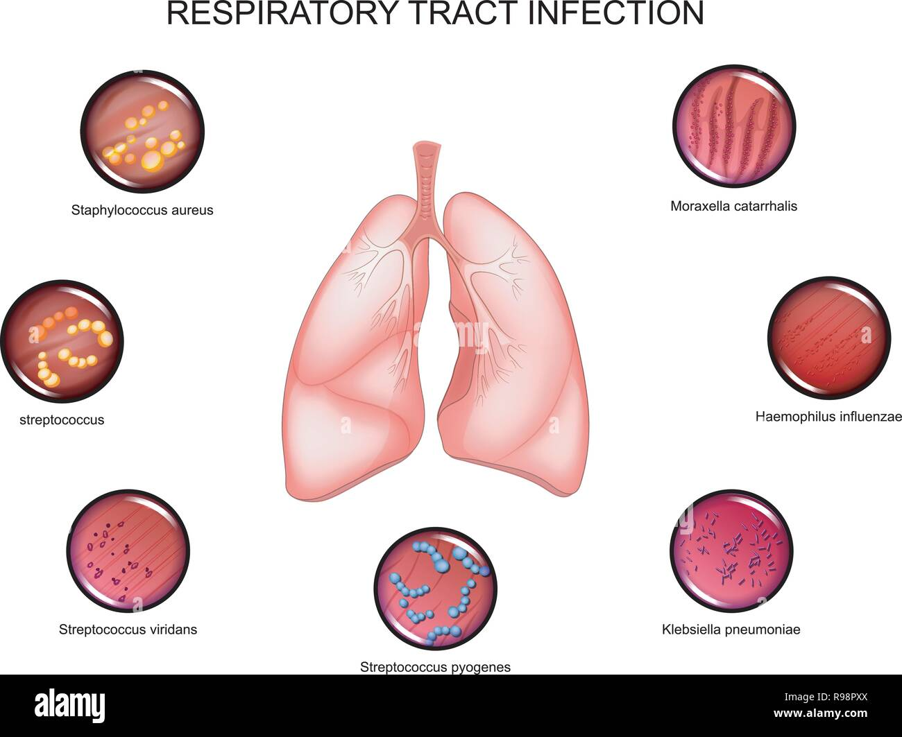 vector illustration of lungs and respiratory tract infections - Stock Vector