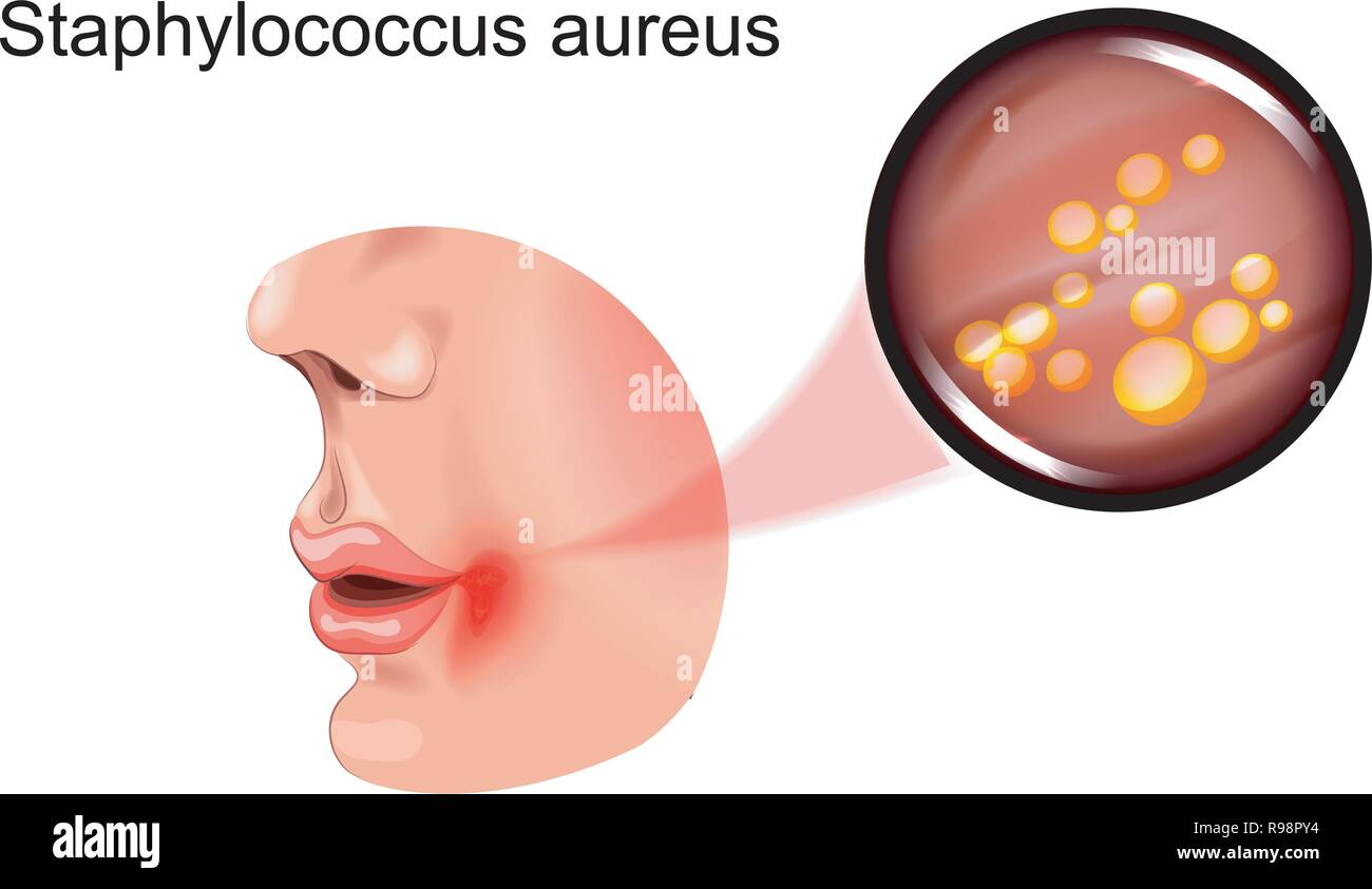 vector illustration of a sore on face. staphylococcus - Stock Vector