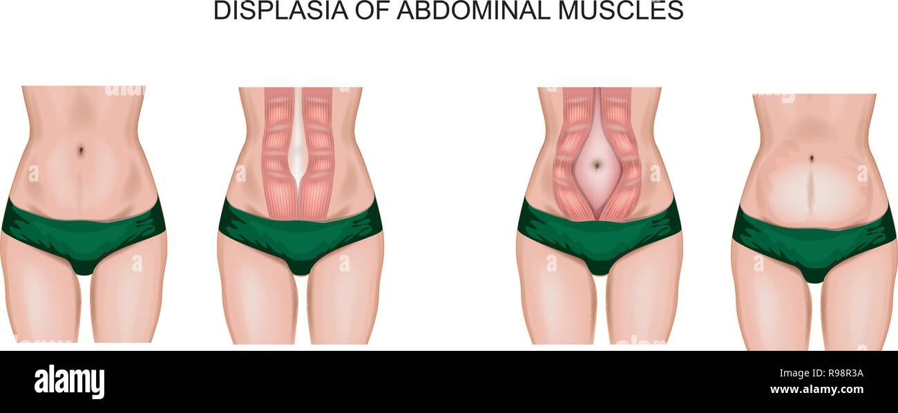 illustration of abdominal muscle diastasis after pregnancy - Stock Vector
