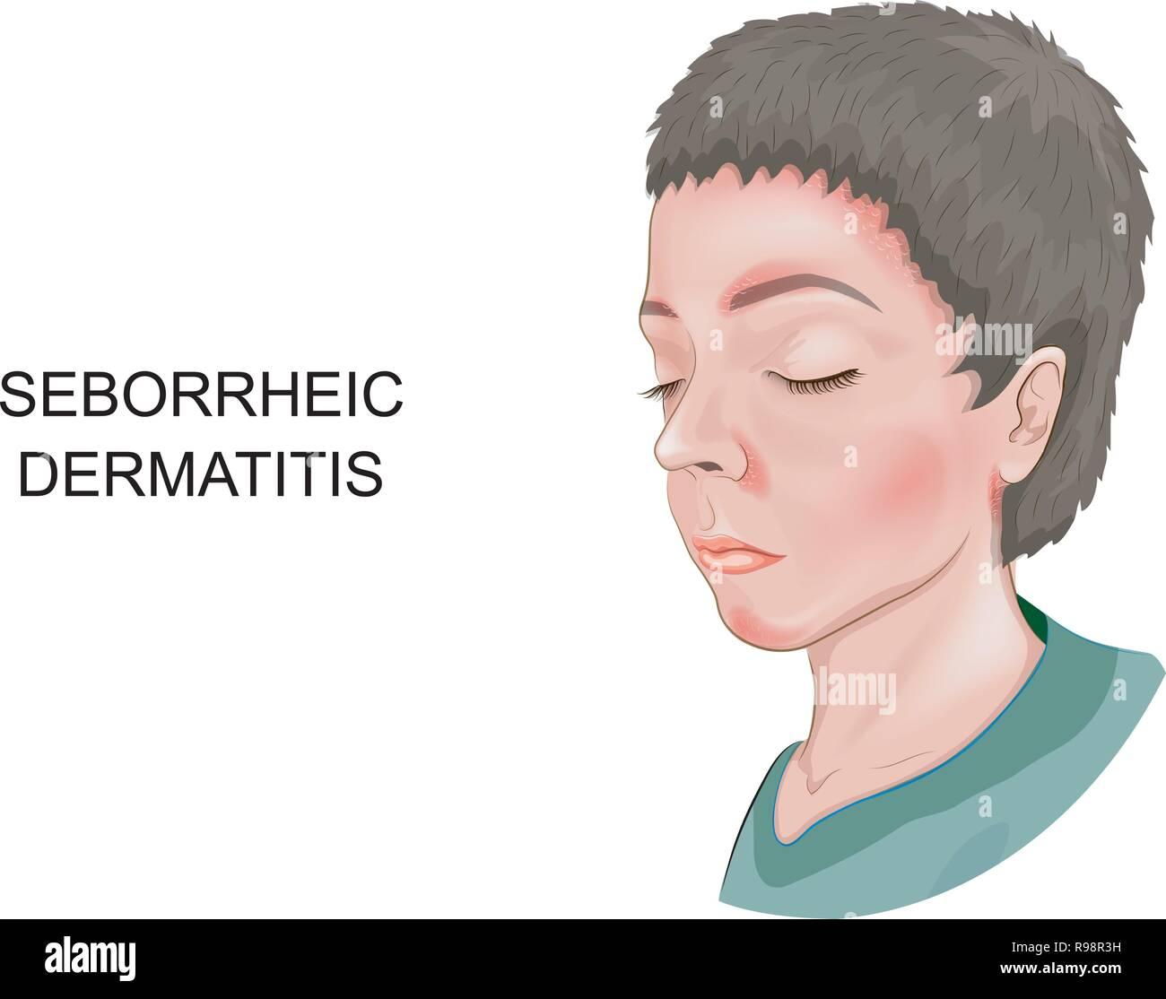 Seborrheic Dermatitis Stock Photos & Seborrheic Dermatitis