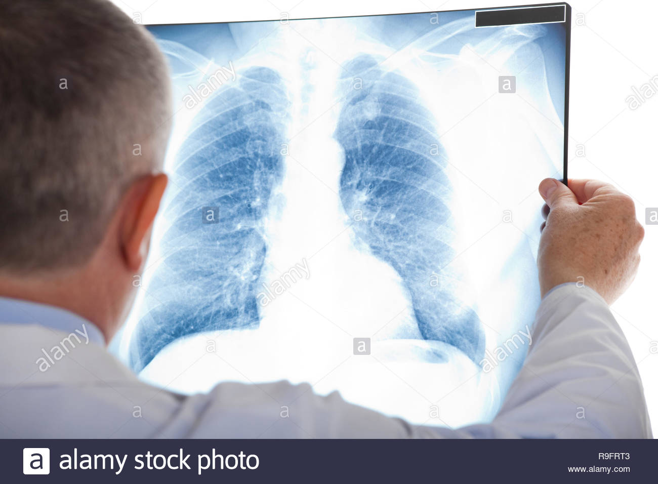Doctor examining a lung radiography - Stock Image