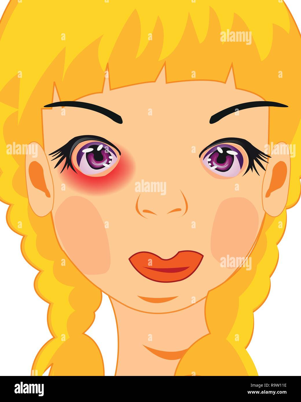 Making look younger girl with bruise under eye - Stock Vector