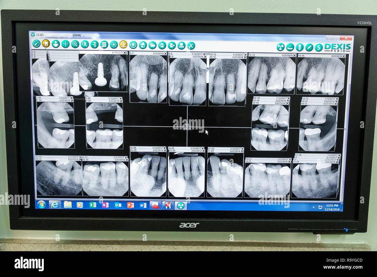 Miami Beach Florida xrays x-rays teeth mouth fillings implant crown dentist periodontist office examination room - Stock Image