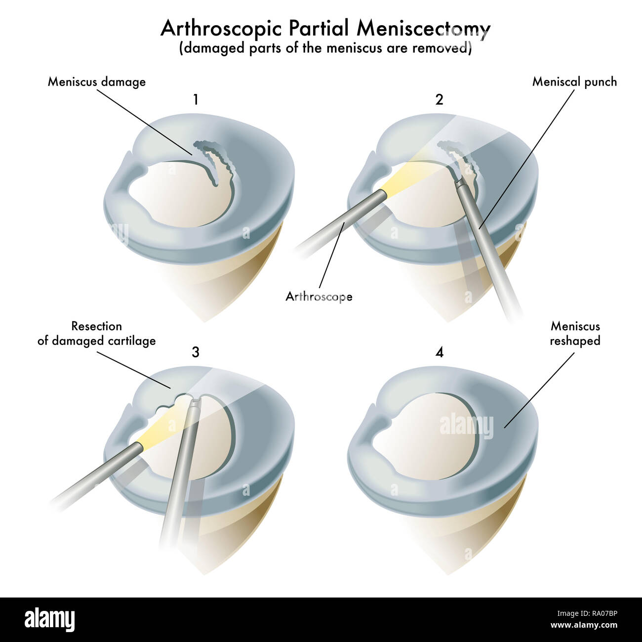 Medical illustration of an operation of a arthroscopic partial meniscectomy - Stock Image