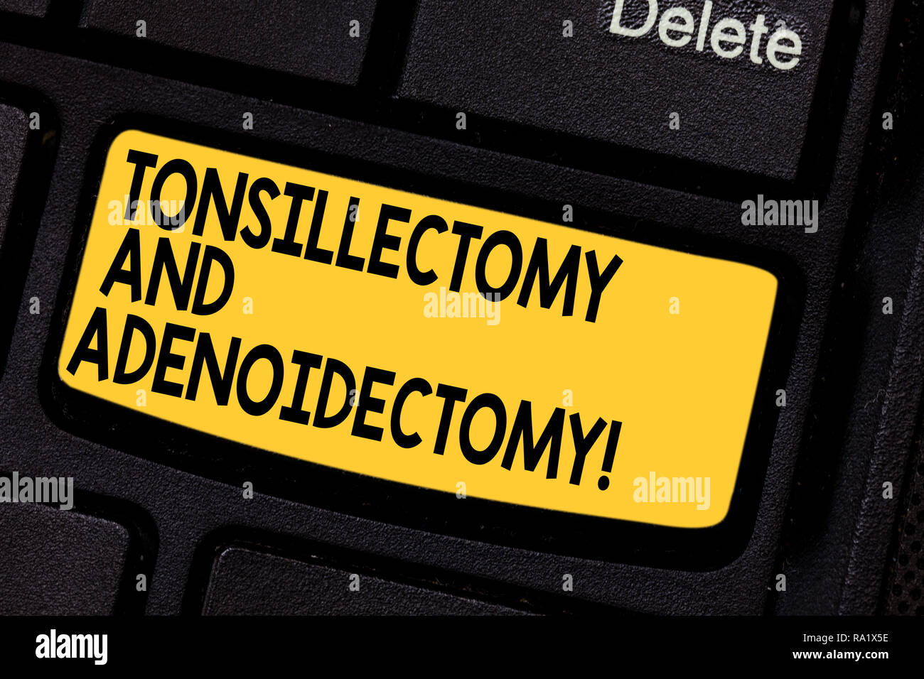 Handwriting text Tonsillectomy And Adenoidectomy. Concept meaning Procedure in removing tonsil and adenoid Keyboard key Intention to create computer m - Stock Image