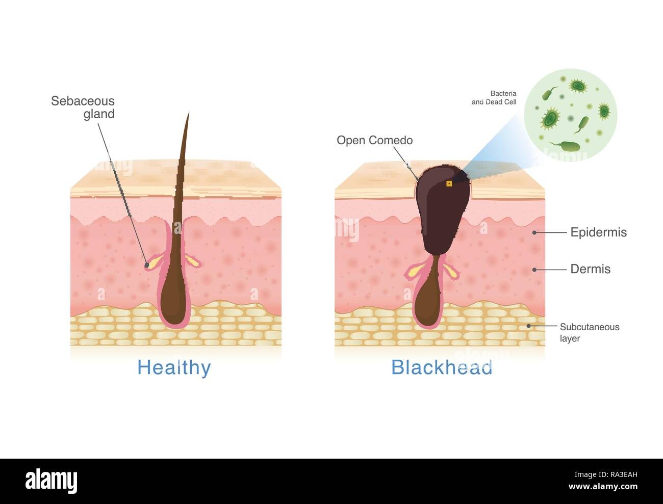 bacteria in blackhead with human skin layer structure and healthy skin