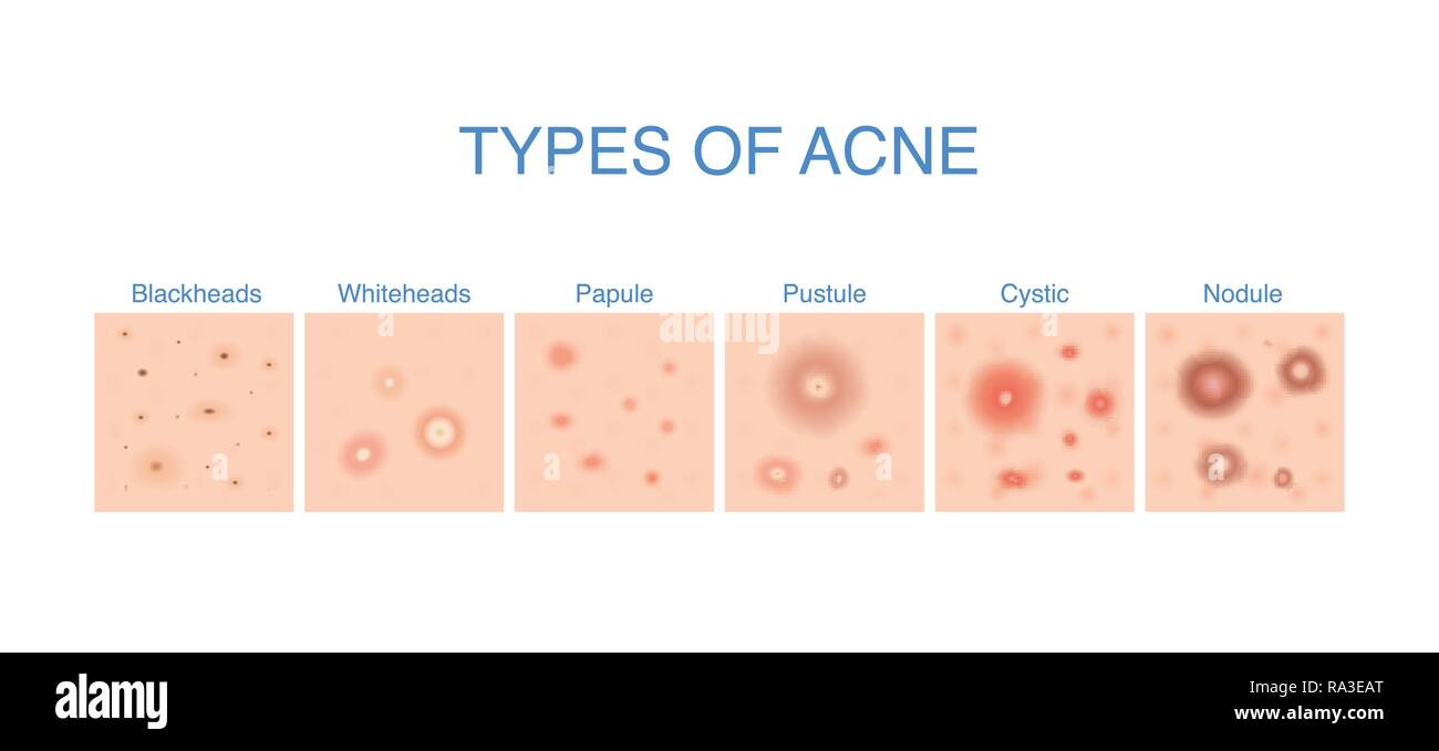 Skin Problems Stock Photos & Skin Problems Stock Images ...