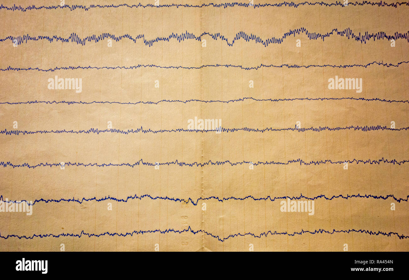 Readout from 20th century polygraph / lie detector showing physiological responses from interrogated suspect - Stock Image