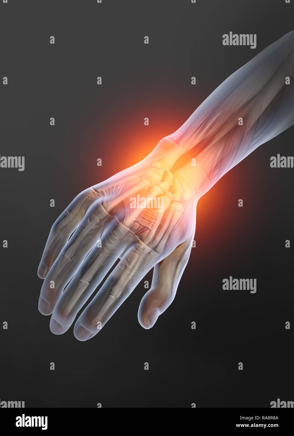 Osteoarthritis, painful wrist - Stock Image