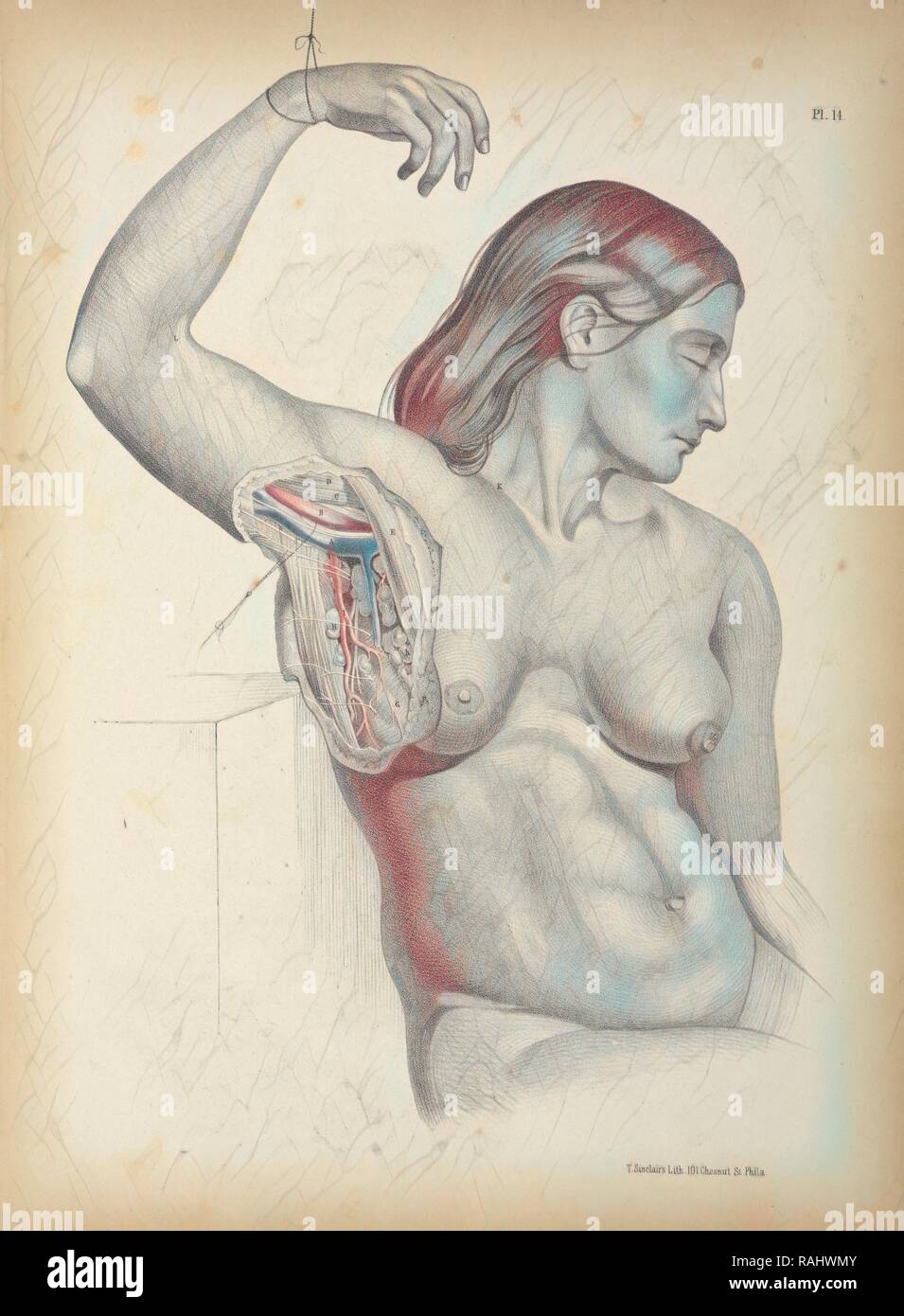 Pl. 14, Surgical anatomy, Maclise, Joseph, Lithography, 1851, Colored lithograph. Maclise is the author and reimagined - Stock Image