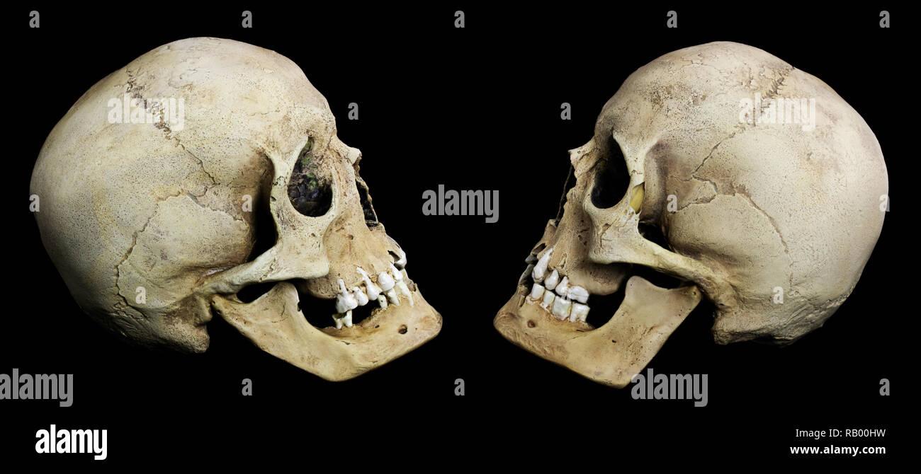 Human skull laid on black background - Stock Image