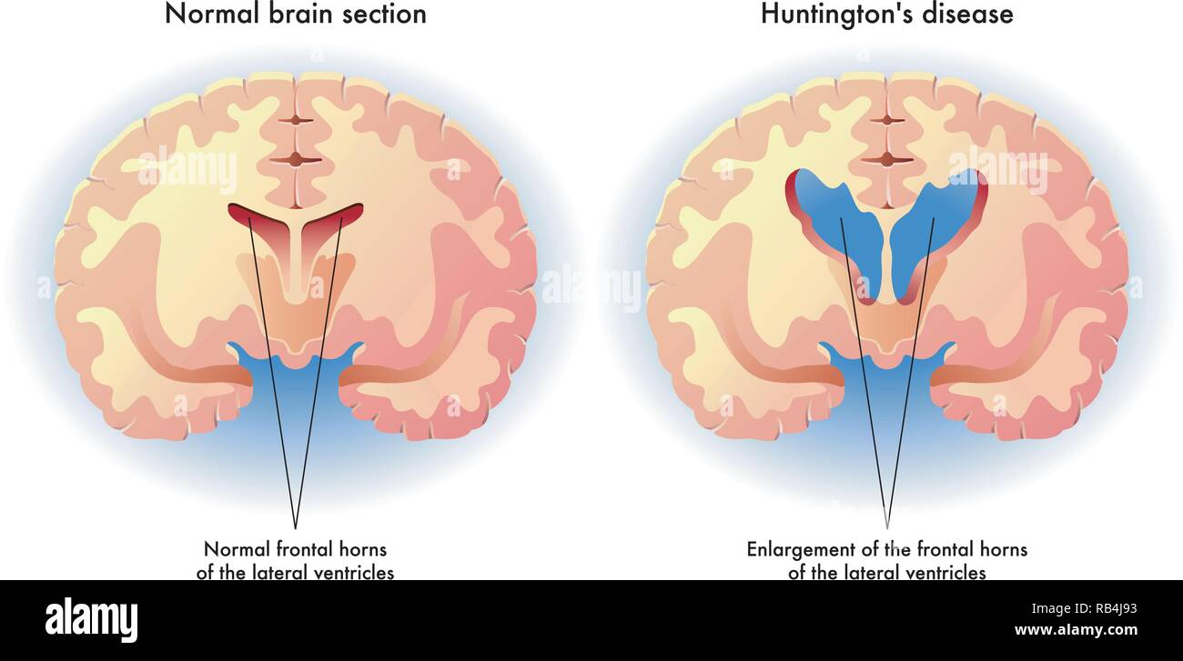Medical illustration of the symptoms of Huntington's disease in the brain - Stock Vector