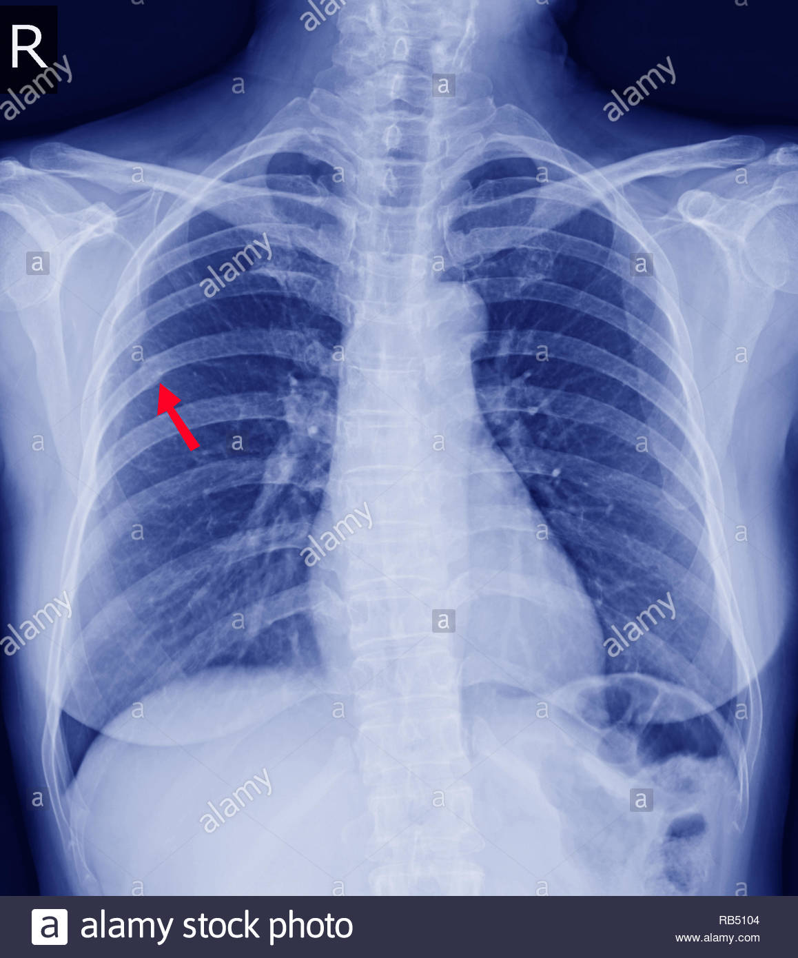 Chest x-ray Fracture right posterior 6th rib and possible fracture lateral aspect of left 9th rib.Normal heart size.No definite active pulmonary infil - Stock Image