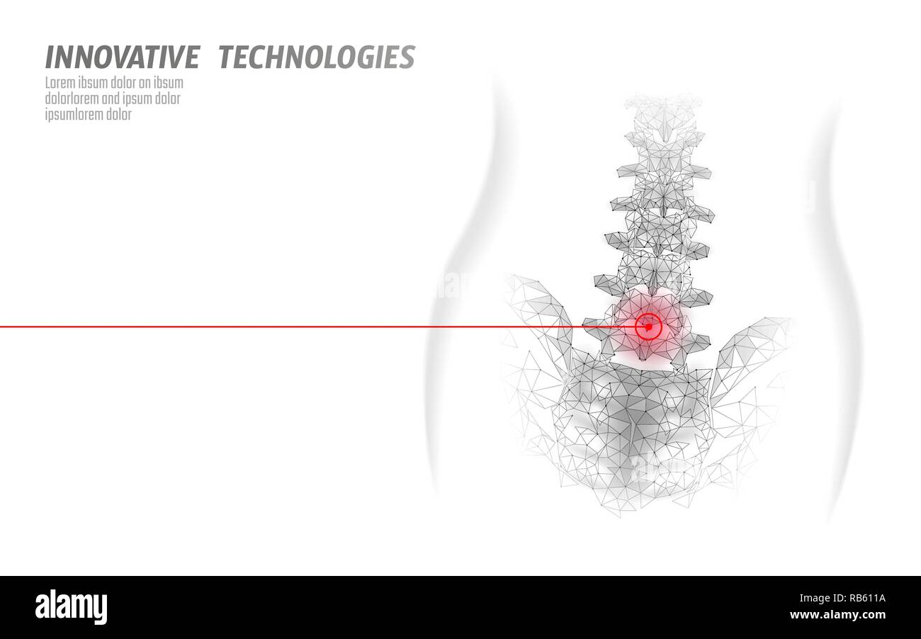 Laser physiotherapy human spine. Pain area surgery operation modern medicine technology low poly triangles 3D render female back hernia vector illustration - Stock Vector