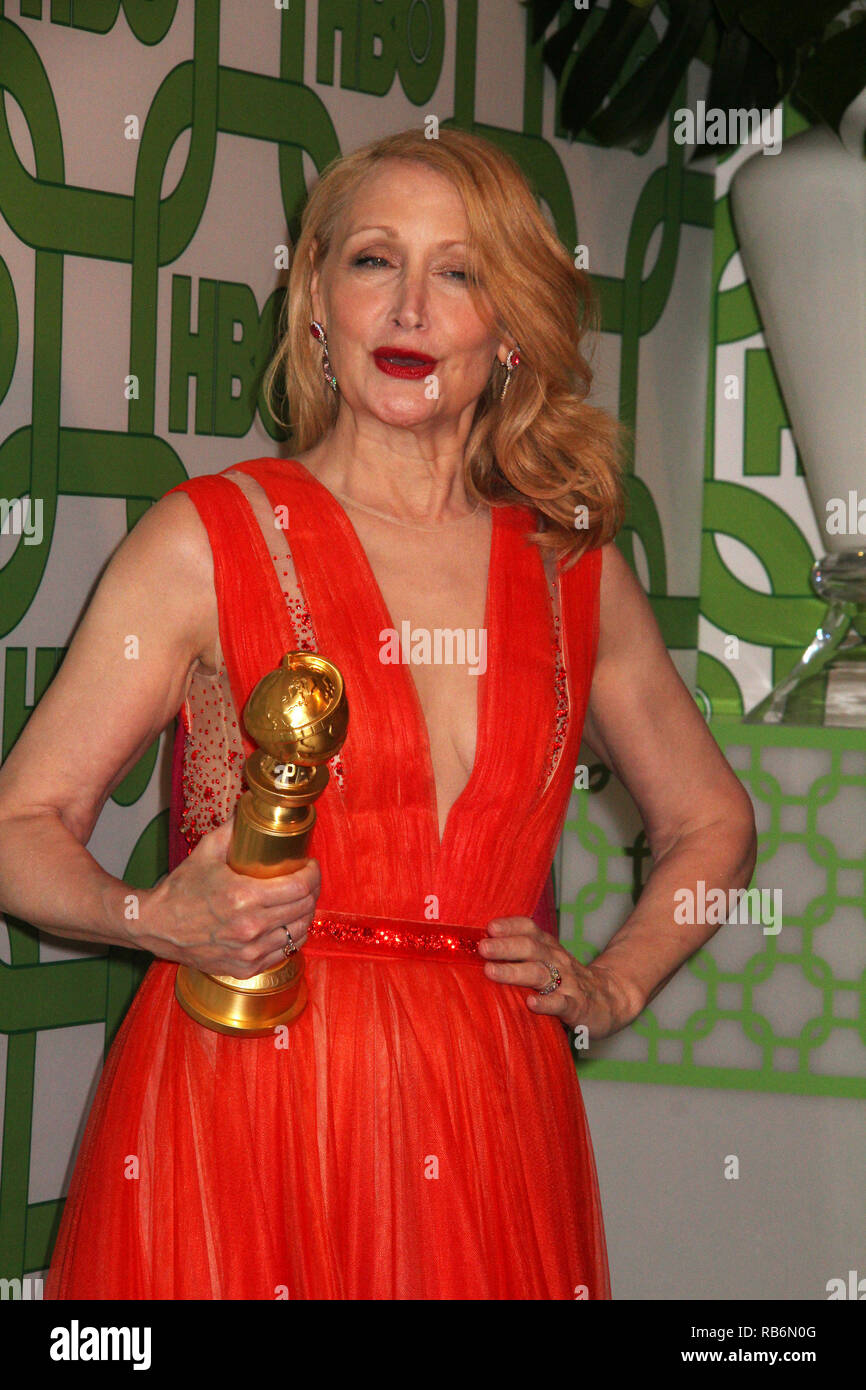 Patricia Clarkson  01/06/2019 The 76th Annual Golden Globe Awards HBO After Party held at the Circa 55 Restaurant at The Beverly Hilton in Beverly Hills, CA   Photo: Cronos/Hollywood News Stock Photo