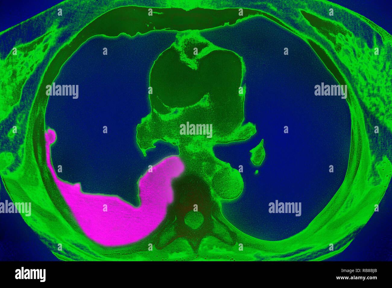 PLEURISY CT SCAN - Stock Image