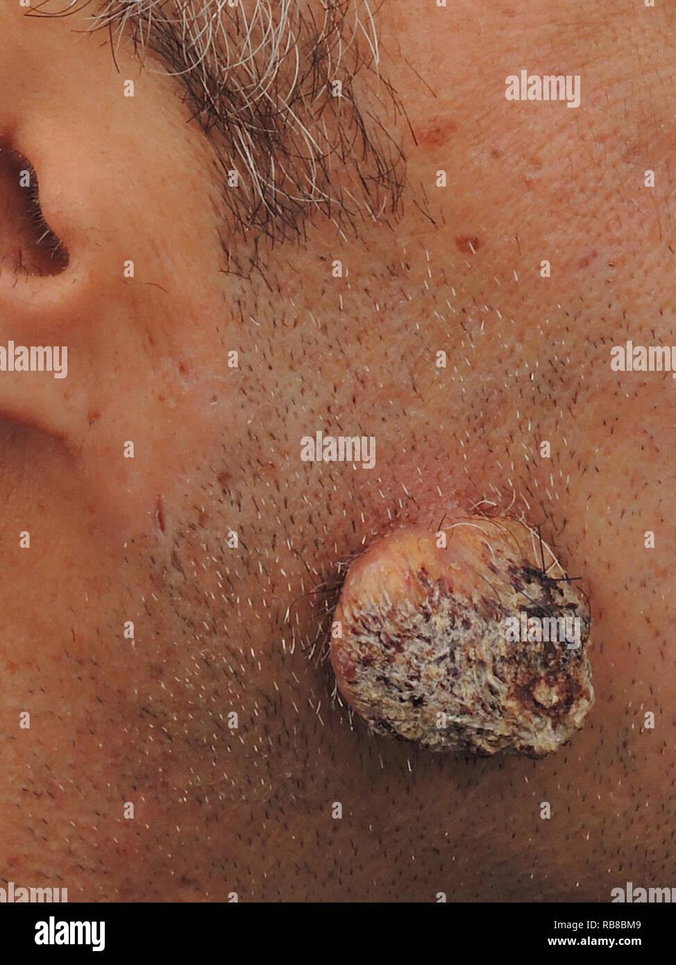 Colon tumors and facial flushing 5