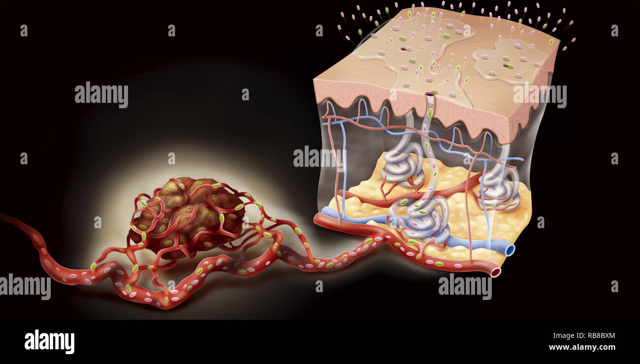 CANCER & SWEAT - Stock Image