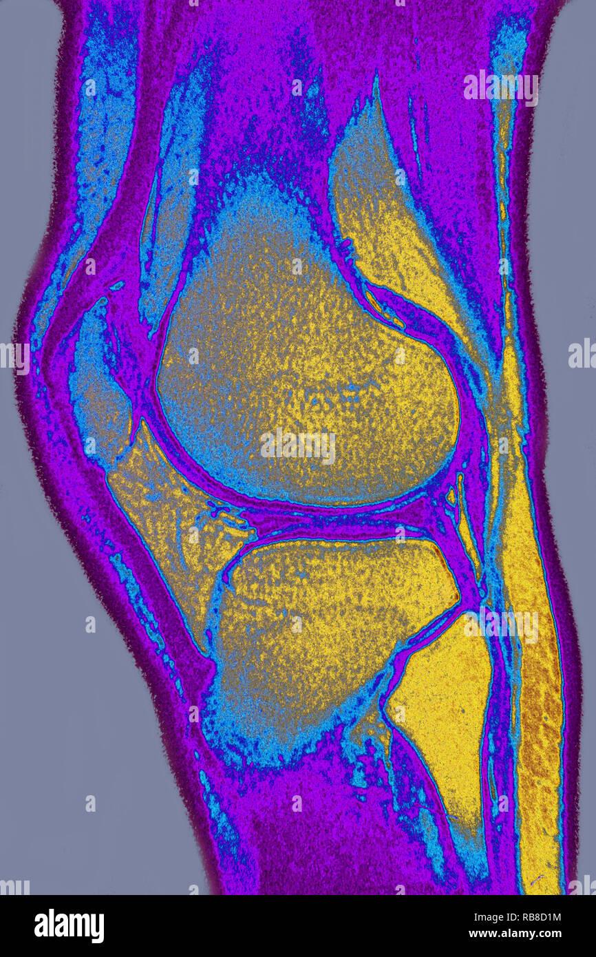 Normal knee MRI - Stock Image