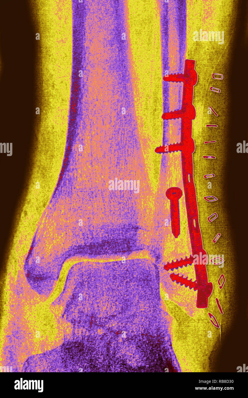 Osteosynthesis on a fracture of the fibula - Stock Image