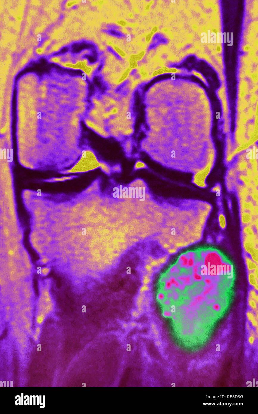 Osteosarcoma of the fibula - Stock Image