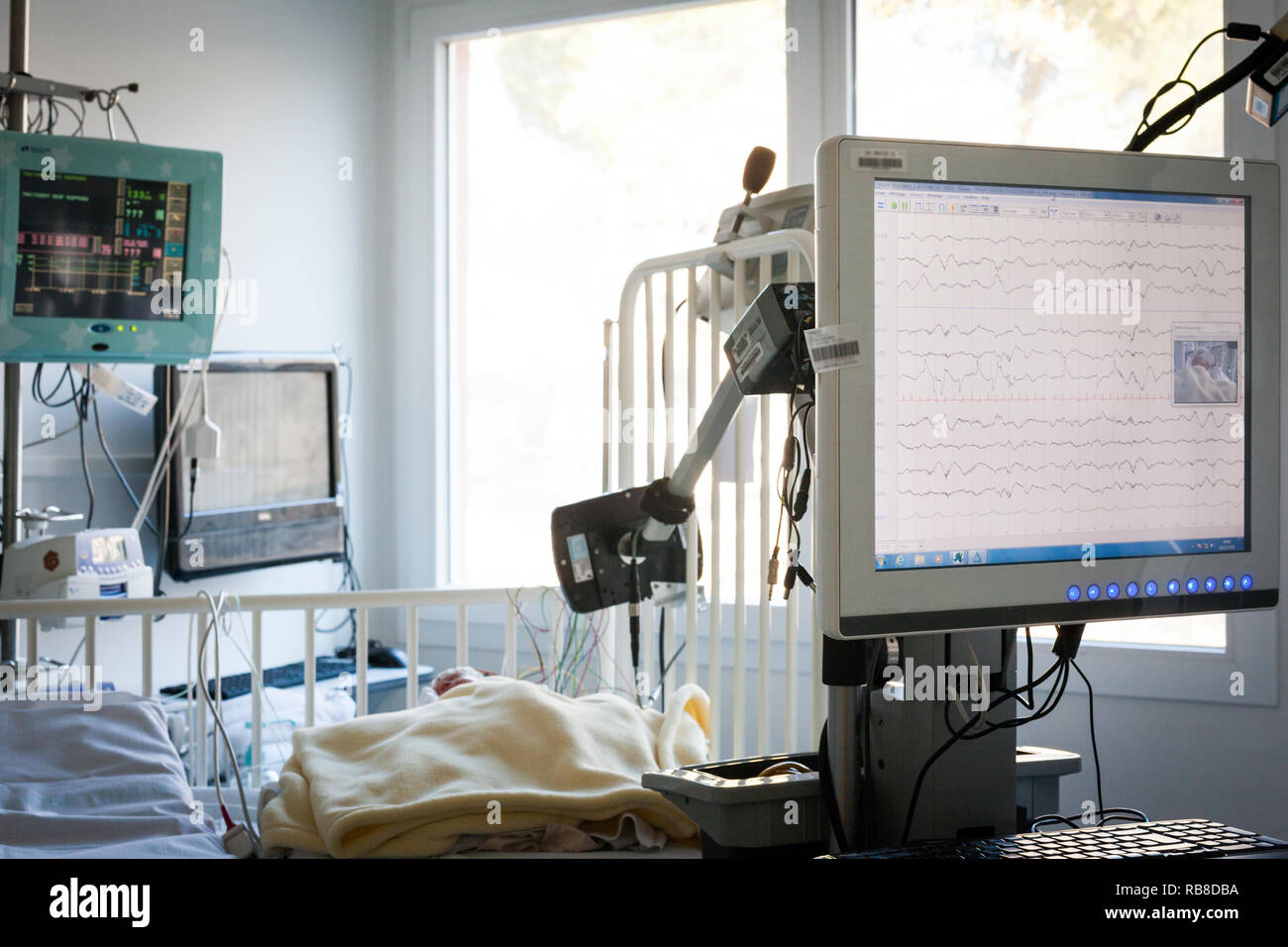 A premature baby is constantly watched with probes and sensors  in the neonatalogy department. - Stock Image