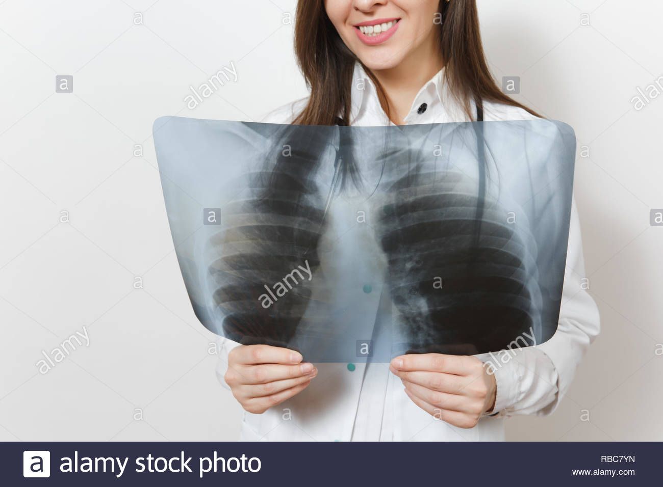 Close up cropped doctor woman with X-ray of lungs, fluorography, roentgen isolated on white background. Female doctor in medical gown stethoscope. Healthcare personnel, medicine concept. Pneumonia. - Stock Image