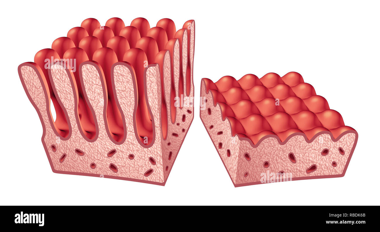 Celiac or coeliac disease anatomy medical concept with normal villi and damaged small intestine lining as an autoimmune disorder of the digestion. - Stock Image