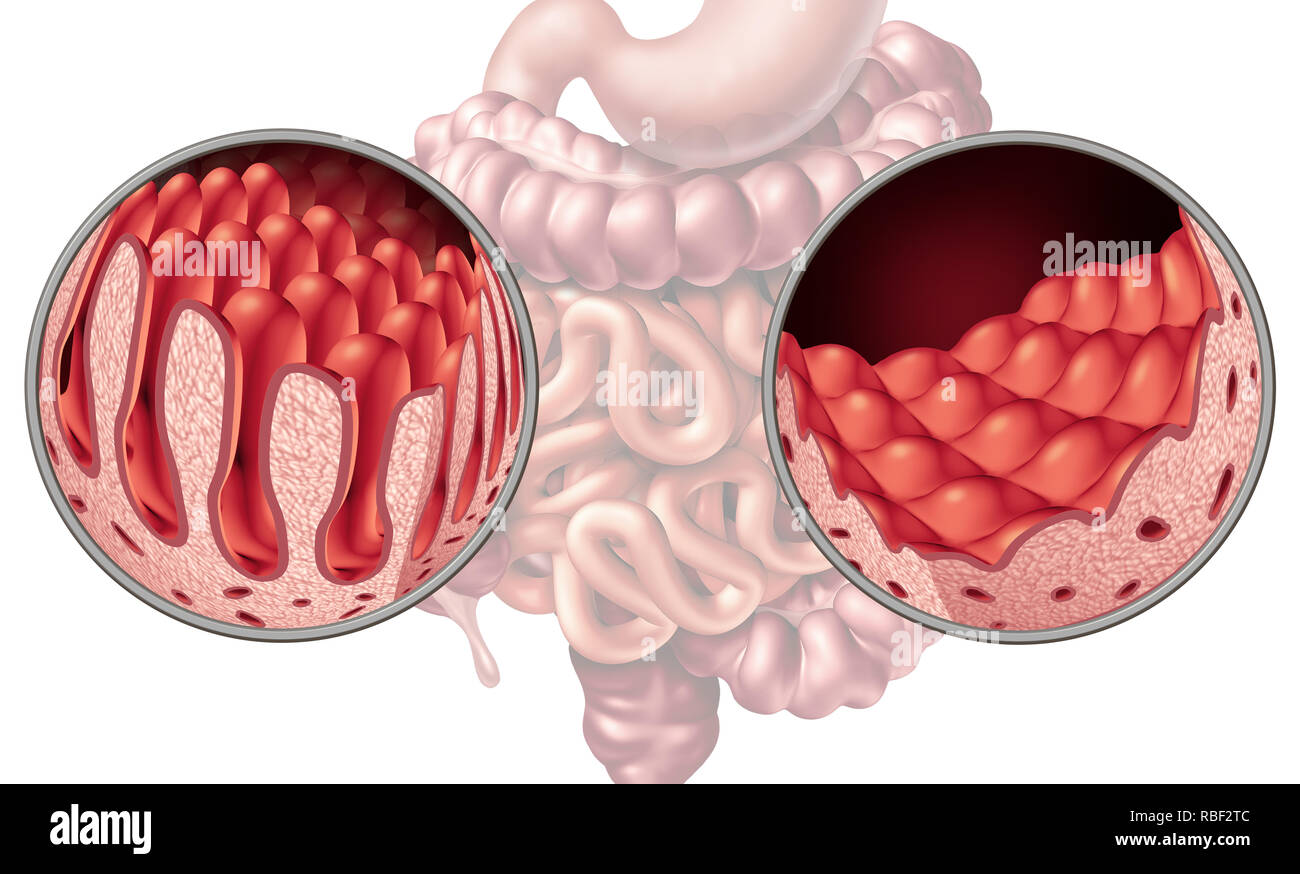 Celiac or coeliac intestine disease anatomy medical concept with normal villi and damaged small bowel lining as an autoimmune disorder. - Stock Image