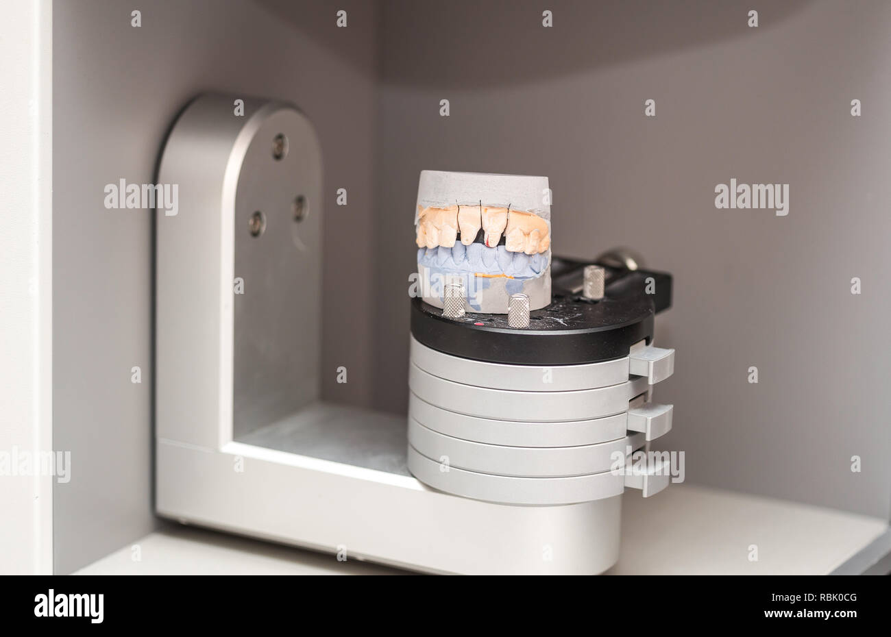Dental molding prepared for 3D scanning  3D Prosthesis Scanner Stock