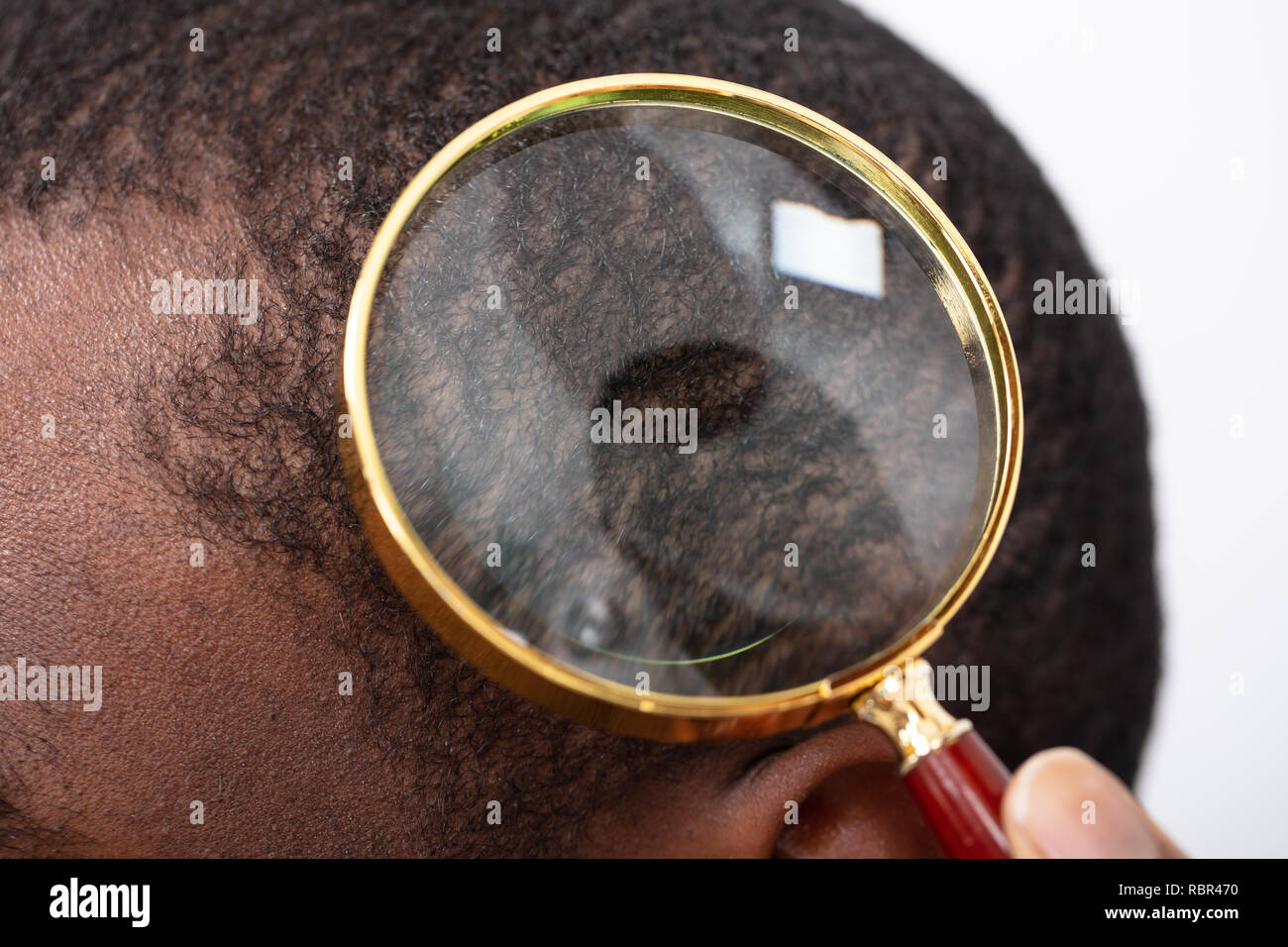 Close-up Of Man's Hair Seen Through Transparent Magnifying Glass Stock Photo