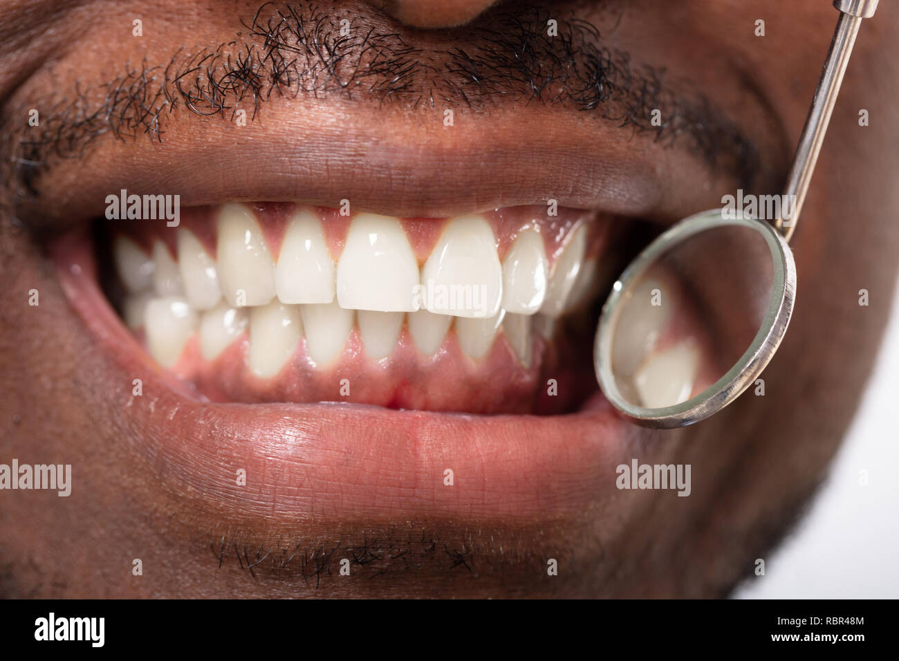Male Patient Being Checked By Dentist With Dental Mirror And