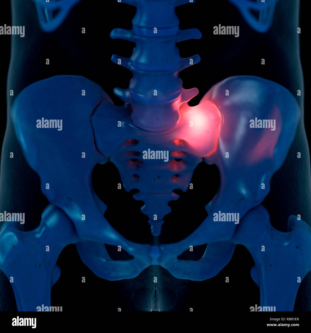 Illustration of a painful sacrum joint. - Stock Image