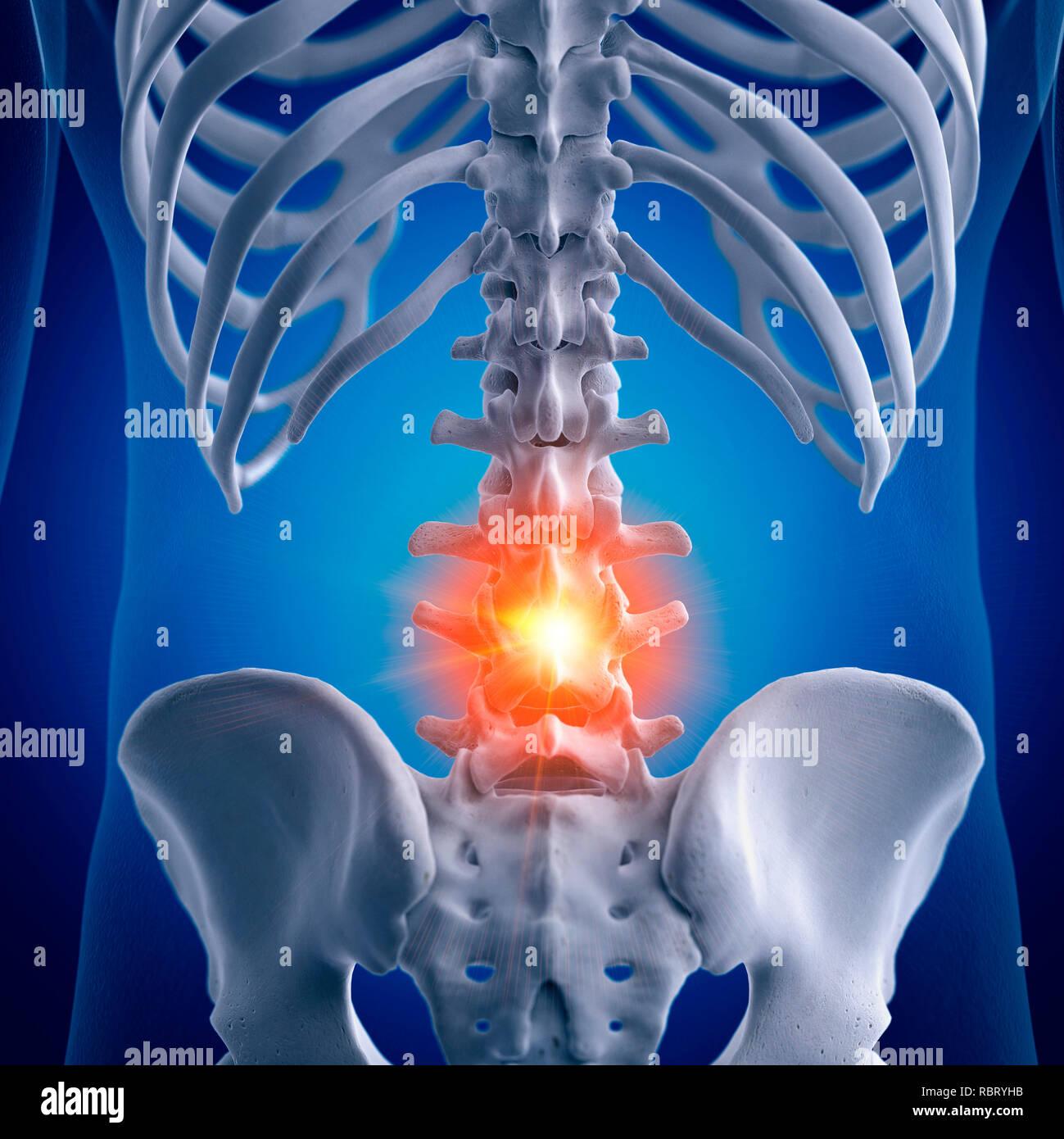 Curvature Of The Lumbar Stock Photos & Curvature Of The