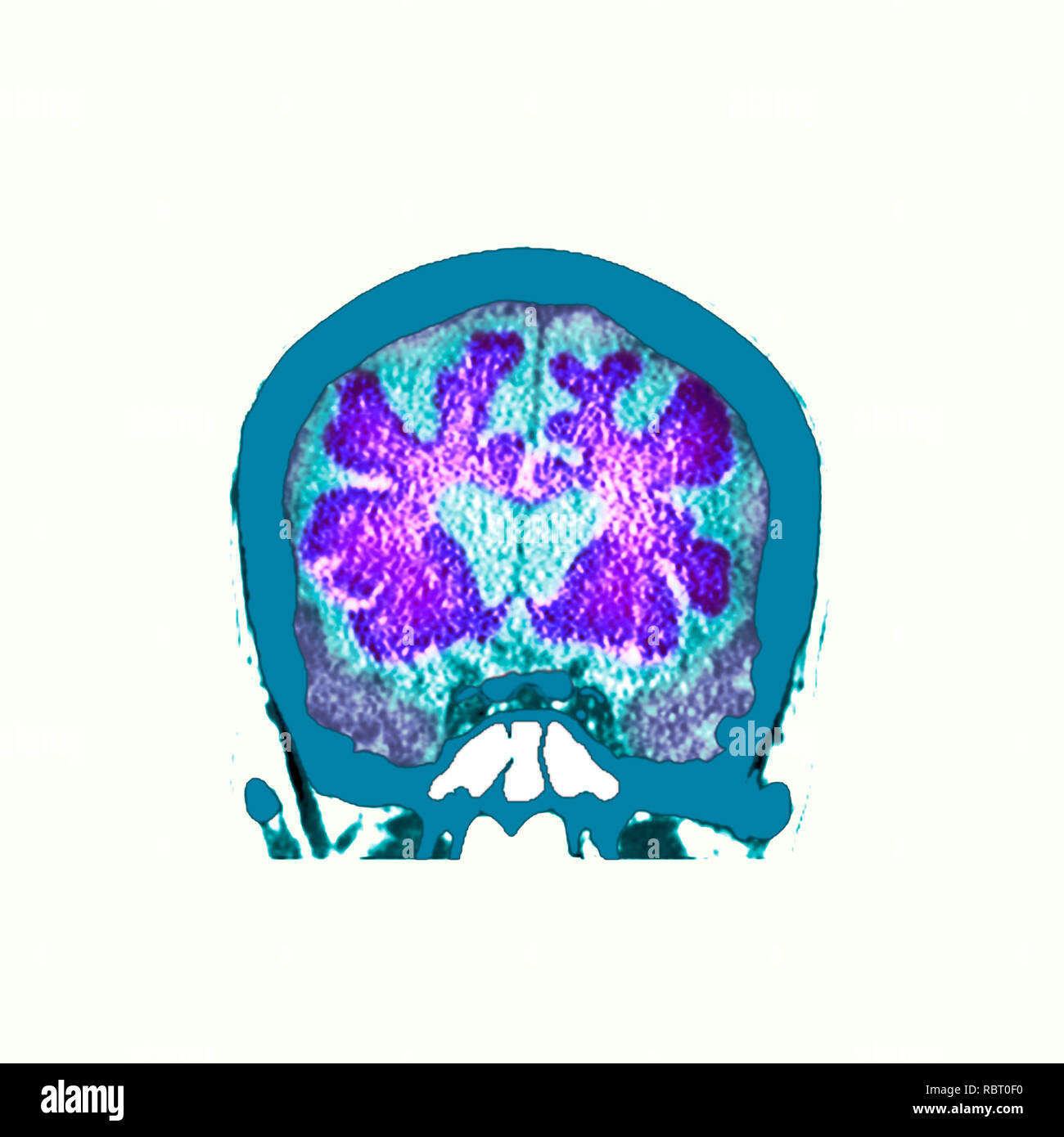 Brain in dementia. Coloured computed tomography (CT) scan of a section through the brain of an 89-year-old male patient with dementia. The brain has atrophied (shrunk), shown by the enlarged central ventricles and deep indentations around the brain's edges. - Stock Image