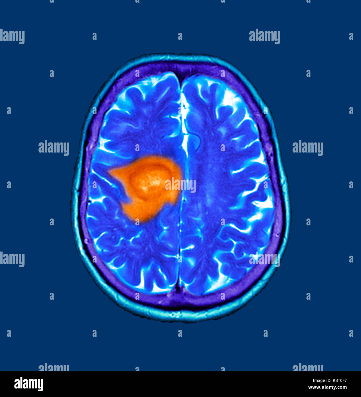 Glioblastoma brain cancer. Coloured computed tomography (CT) scan of a section through the brain of an 84-year-old female patient with glioblastoma (dark, left). Glioblastoma is the most aggressive form of brain cancer. Treatment involves surgery, after which chemotherapy and radiation therapy are used. However, the cancer usually reoccurs despite treatment and the most common length of survival after diagnosis is 12-15 months. Without treatment, survival is typically 3 months. - Stock Image
