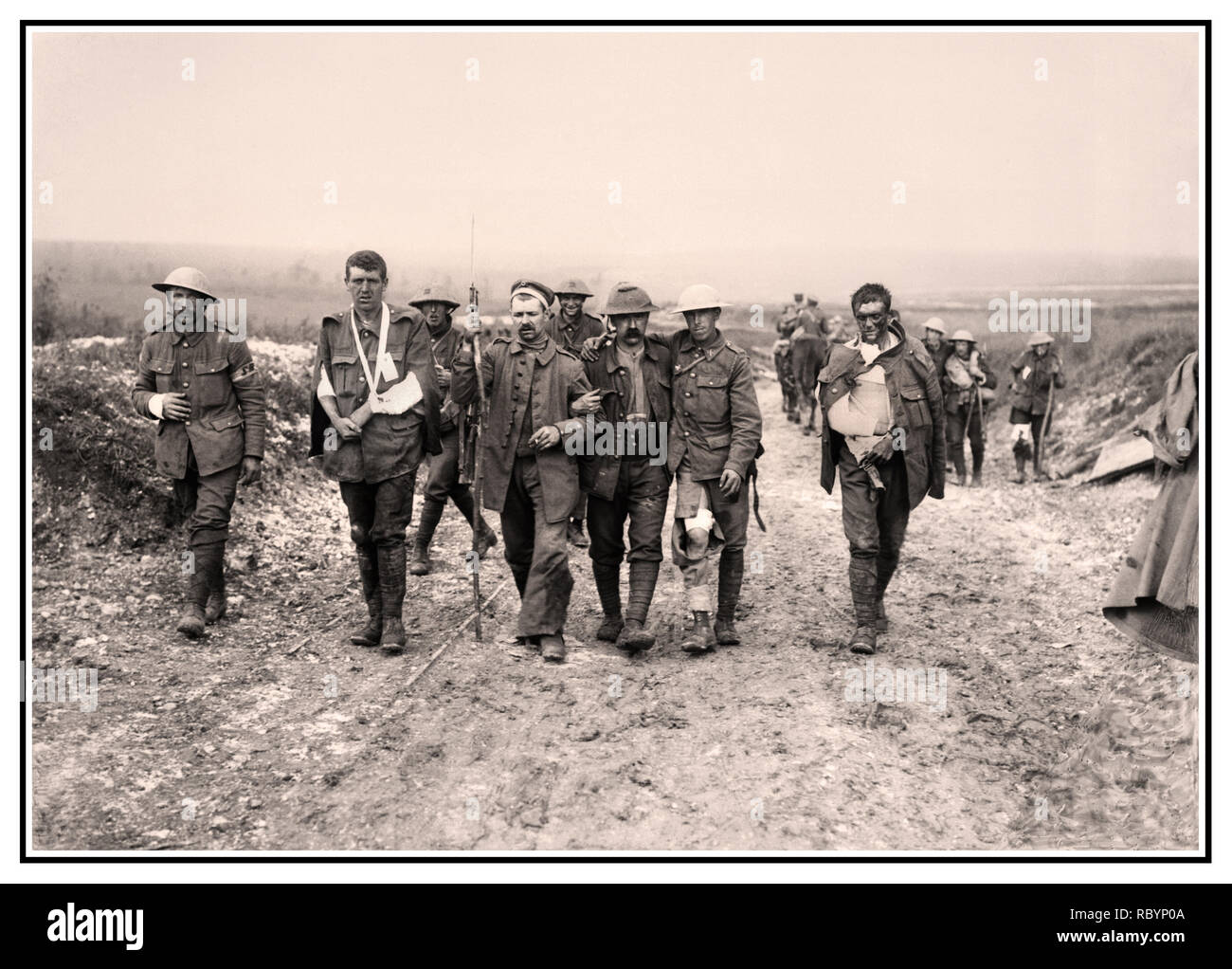 WW1 Battle of The Somme archive image of  a German prisoner helping British wounded make their way to a dressing station near Bernafay Wood following fighting on Bazentin Ridge, 19 July 1916, during the Battle of the Somme. Five British and German walking wounded, injured on the way to a dressing station near Bernafay France Stock Photo