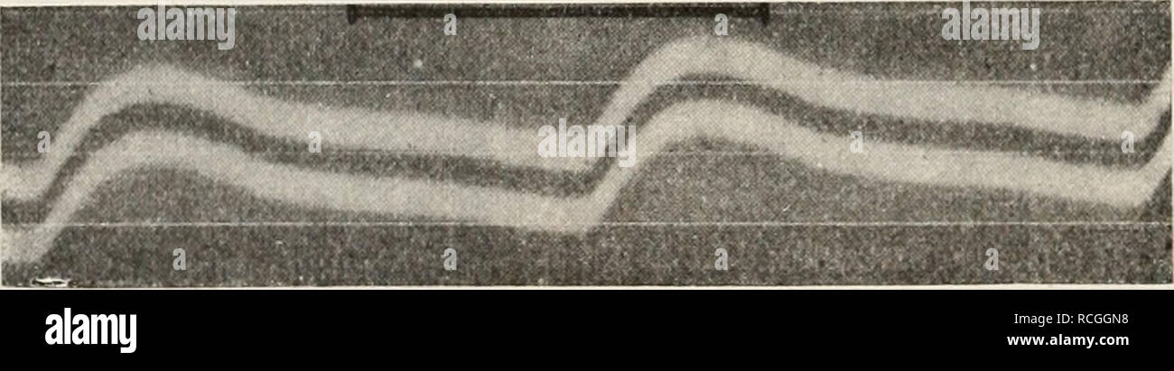 . Die Physiologie des Kreislaufes. Cardiovascular system. Fig. 425. Puls einer Mesenterialarterie. Nach C. Tigerstedt. Von links nach rechts zu lesen. Im Puls der Mesenterialarterien tretenj die superponierten Wellen in der Regel nur ganz undeutlich auf, obgleich daselbst ab und zu, Insbesondere nach Adrenalin, Andeutungen von solchen vorkommen. Beim Kaninchen gibt also die Form des Pulses in den peripheren Gefäßen wesentlich die des zentralen Pulses wieder; nur wird das systolische Plateau in den peripheren Gefäßen immer mehr absteigend und die für den zentralen Puls so charakteristischen sup Stock Photo