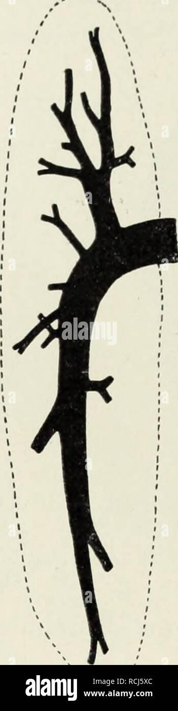 . Die Klassen und Ordnungen der Weichthiere (Malacozoa) : wissenschaftlich dargestellt in Wort und Bild. Tunicata; Mollusks. Abb. 42 Abb. 43 i m Abb. 44 Abb. 42. Rechte Niere von Delphinus delphis. — 1, Nach Anthony 1922, Abb. 5, 2 Nierenarterien, 3 Ureter. S. 44. Abb. 43. Nierenarterien von Mesoplodon bidens. Abb. 44. Nierengänge von Mesoplodon bidens. - Nach Anthony 1922, Abb. 3, 8. 43. Nach Anthony 1922, Abb. 4, S. 43. der Länge des Körpers zunimmt, über die andern Zahnwale bis Mesoplodon,, und daran anschließend bei den Bartenwalen weiter wächst. Der Gefäßeintritt ist nicht überall gleich. - Stock Image