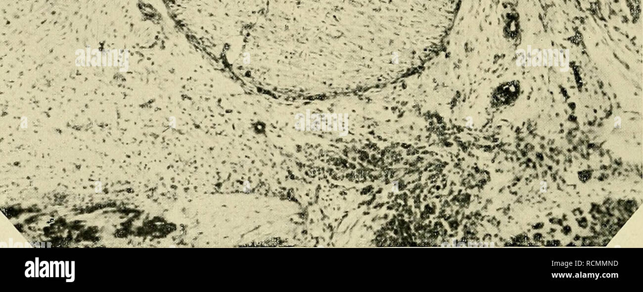 schwarz, ebenholz, klaffende loch