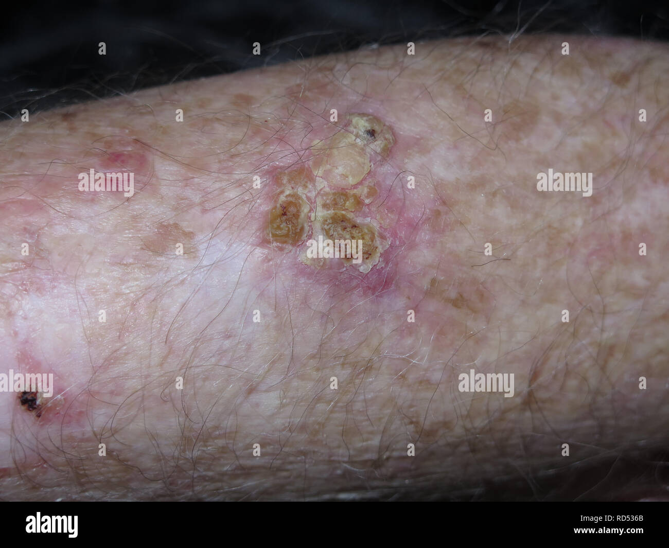 Skin Merkel cell cancer on arm and head of male patient - Stock Image