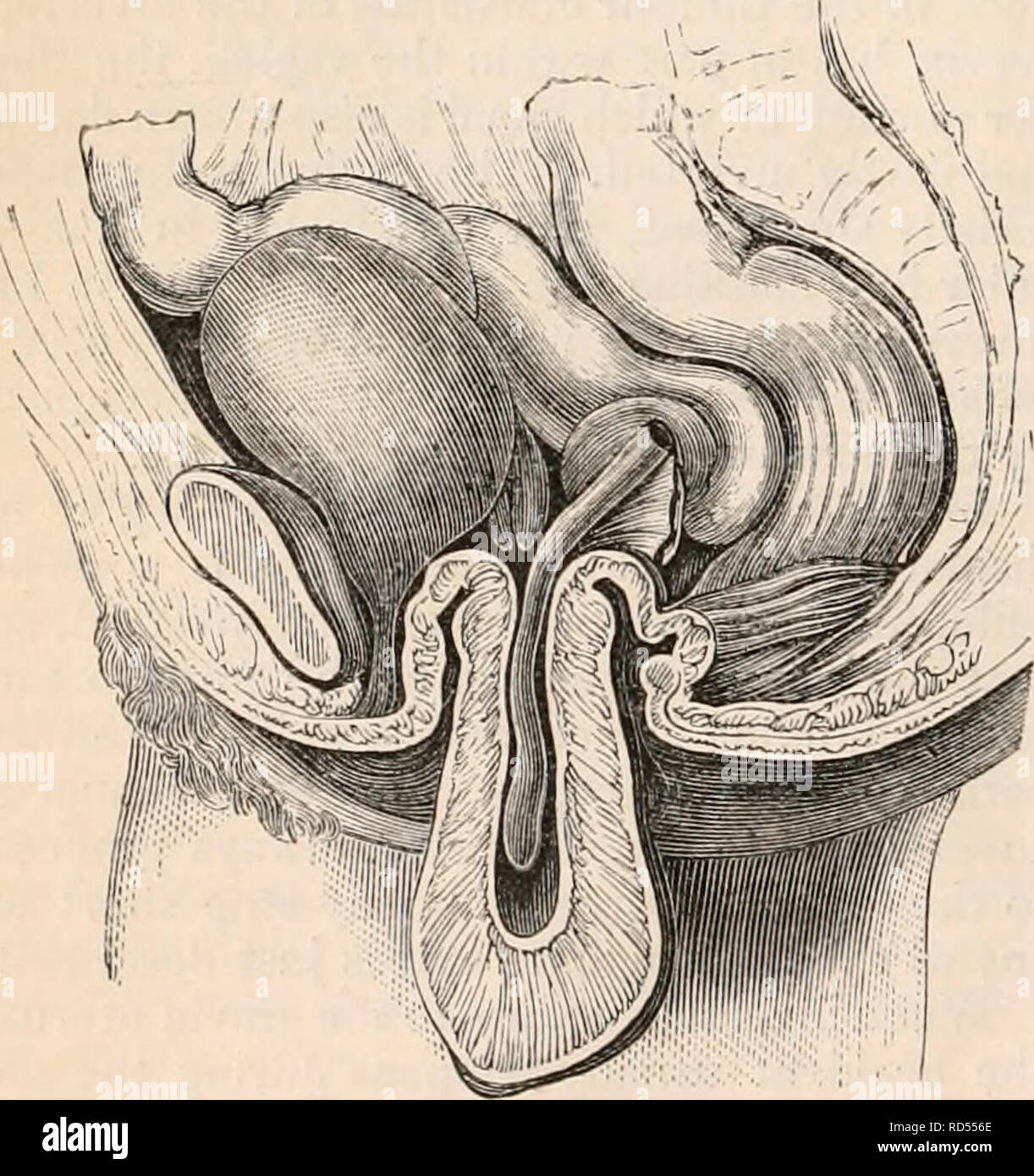 . The cyclopædia of anatomy and physiology. Anatomy; Physiology; Zoology. Incomplete inversion of the uterus. (After J. G. Forbes.) The fundus is beginning to protrude through the os uteri, dragging after it the Fallopian tubes, which are drawn into the hollow formed by the inverted organ. dilatation of the uterine cavity by a tumour the size of a flattened apricot, which was ex- pelled at the moment when the uterus came Fig. 471.. Complete inversion of the uterus. (Diagram.) down completely inverted,—the violent ac- tion of the abdominal muscles and diaphragm probably here producing or aiding - Stock Image