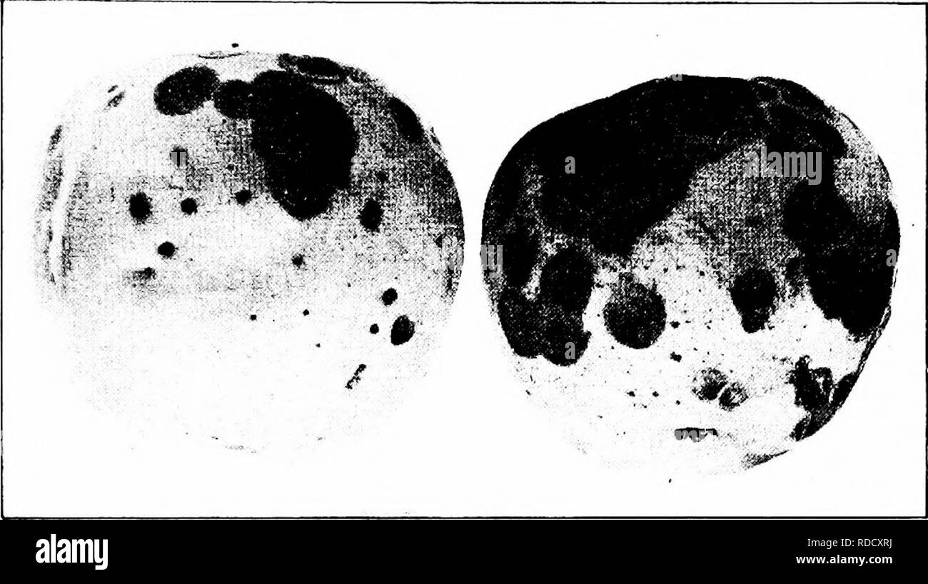 . Manual of fruit diseases . Fruit. APPLE DISEASES 133 with fruiting pustules (Fig. 35, left); these are largest in the central region of the spot and are evident within a quarter of an inch of the margin. If examined with a hand-lens, stiff dark- brown hairs may be observed protruding from the fruiting bodies.. Fig. 35. — Spongy dry-rot; various stages of development. These constitute an important diagnostic sign of the disease. The affected tissue is spongy and dry, whence the name spongy dry-rot. Cause. This apple-rot is caused by the fungus Volutella frudi. With- in the fruiting bodies men - Stock Image