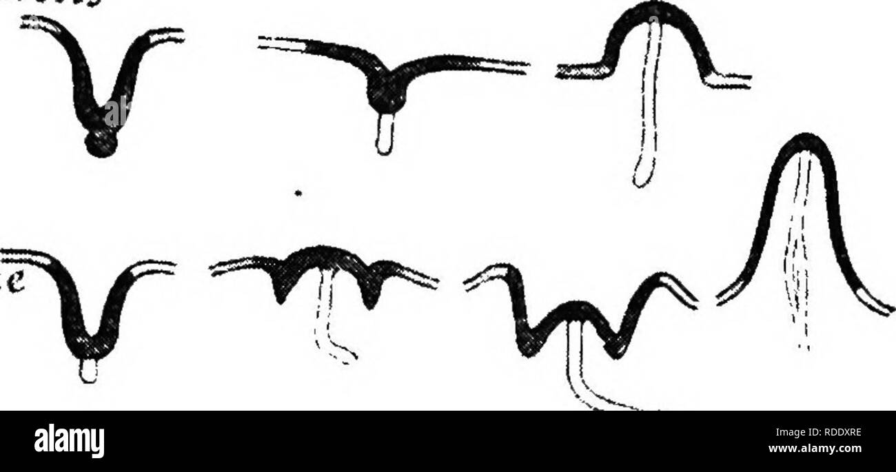 """. The mammary apparatus of the mammalia : in the light of ontogenesis and phylogenesis . Mammals; Mammary glands. NIPPLE DEVELOPMENT OF PLACENTALS 115 ^""""^ifi^ccui. Please note that these images are extracted from scanned page images that may have been digitally enhanced for readability - coloration and appearance of these illustrations may not perfectly resemble the original work.. Bresslau, E. (Ernst), 1877-; Hill, James Peter, 1873-1954. London : Methuen & Co. - Stock Image"""