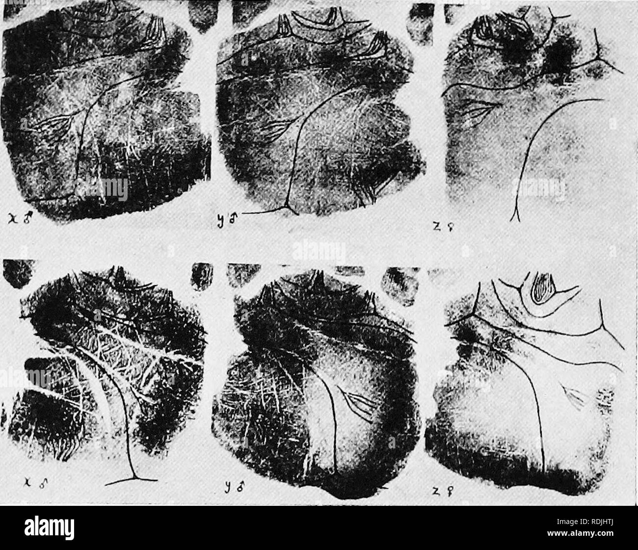 """. The biology of twins (mammals) . Twins. 158 THE BIOLOGY OF TWINS demonstrate monozygotic origin, but lack of identity does not disprove the possibility of monozygotic origin. Wilder has illustrated certain very good cases of identity by means of photographs of palm- and sole-prints (see Fig. 52). The heavy Knes are the hnes of interpretation. Fig. S3.—Photograph (from Wilder) of the left (above) and right (below) palm-prints o'f a set of triplets. Note the close identity of the males, which are evidently """"identicals,"""" and the unlikeness of these to the female triplet on the right,  - Stock Image"""