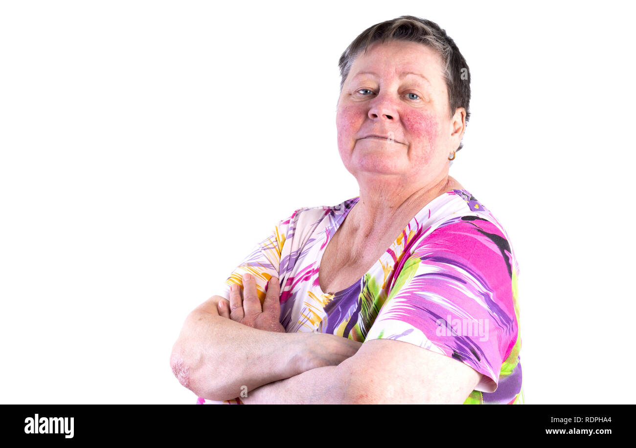 Portrait of smiling elderly woman facing two skin diseases as rosacea and psoriasis vulgaris, no make-up Stock Photo