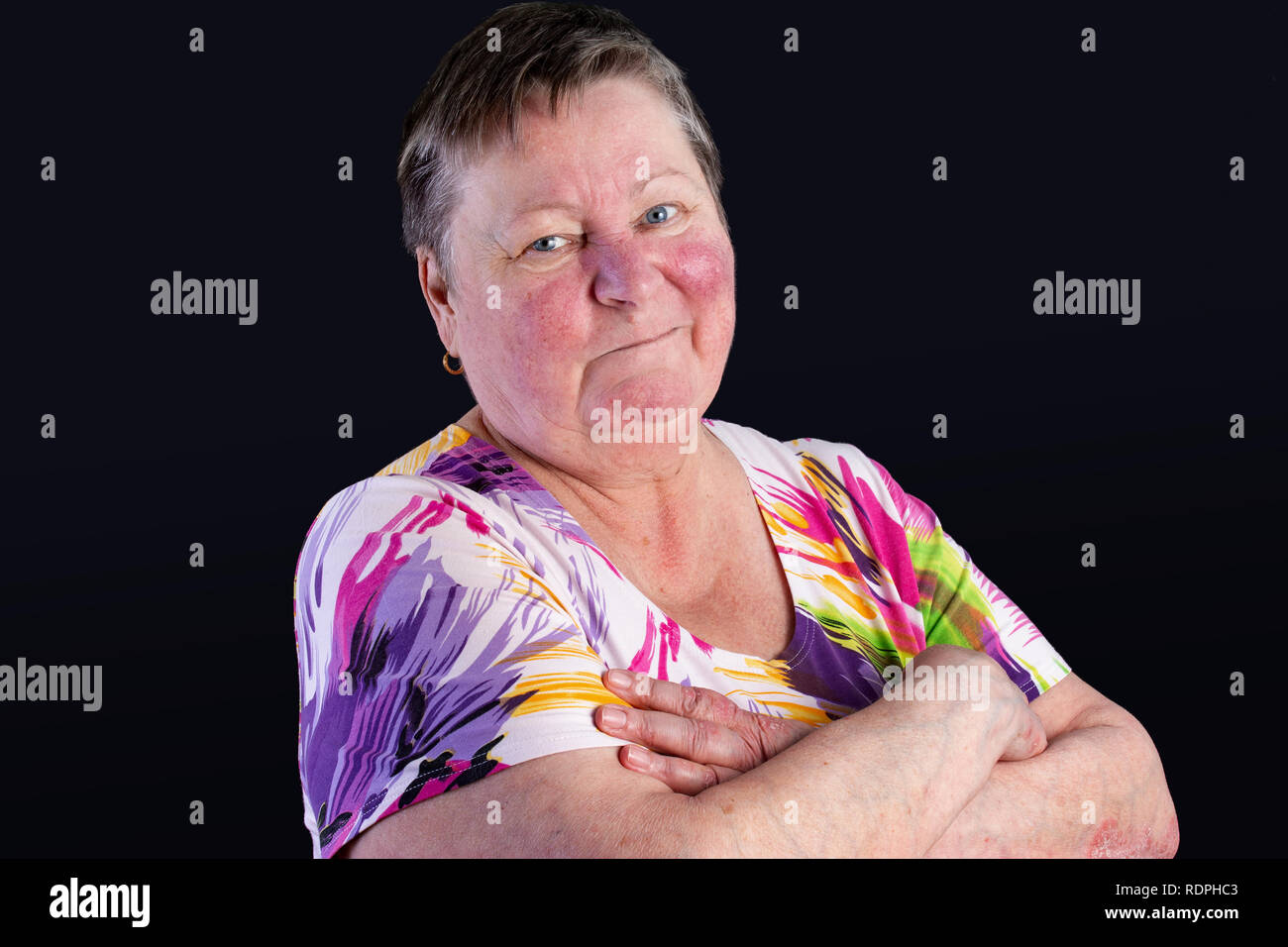 Portrait of unhappy elderly woman facing two skin diseases as rosacea and psoriasis vulgaris, no make-up Stock Photo